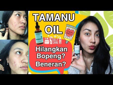 Review Penggunaan Minyak Tanamu Oil Untuk Jerawat