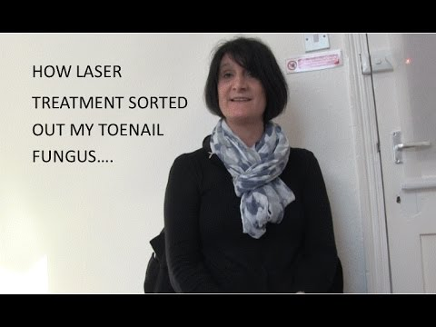 HOW LASER TREATMENT SORTED OUT MY TOENAIL FUNGUS