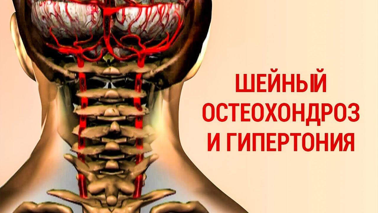 Как избавиться от шейный остеохондроз фото