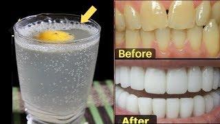केवल 3 बार - गंदे पीले दांतो को सफ़ेद और चमकदार बनाने का कारगर नुस्खा | Teeth Whitening at Home