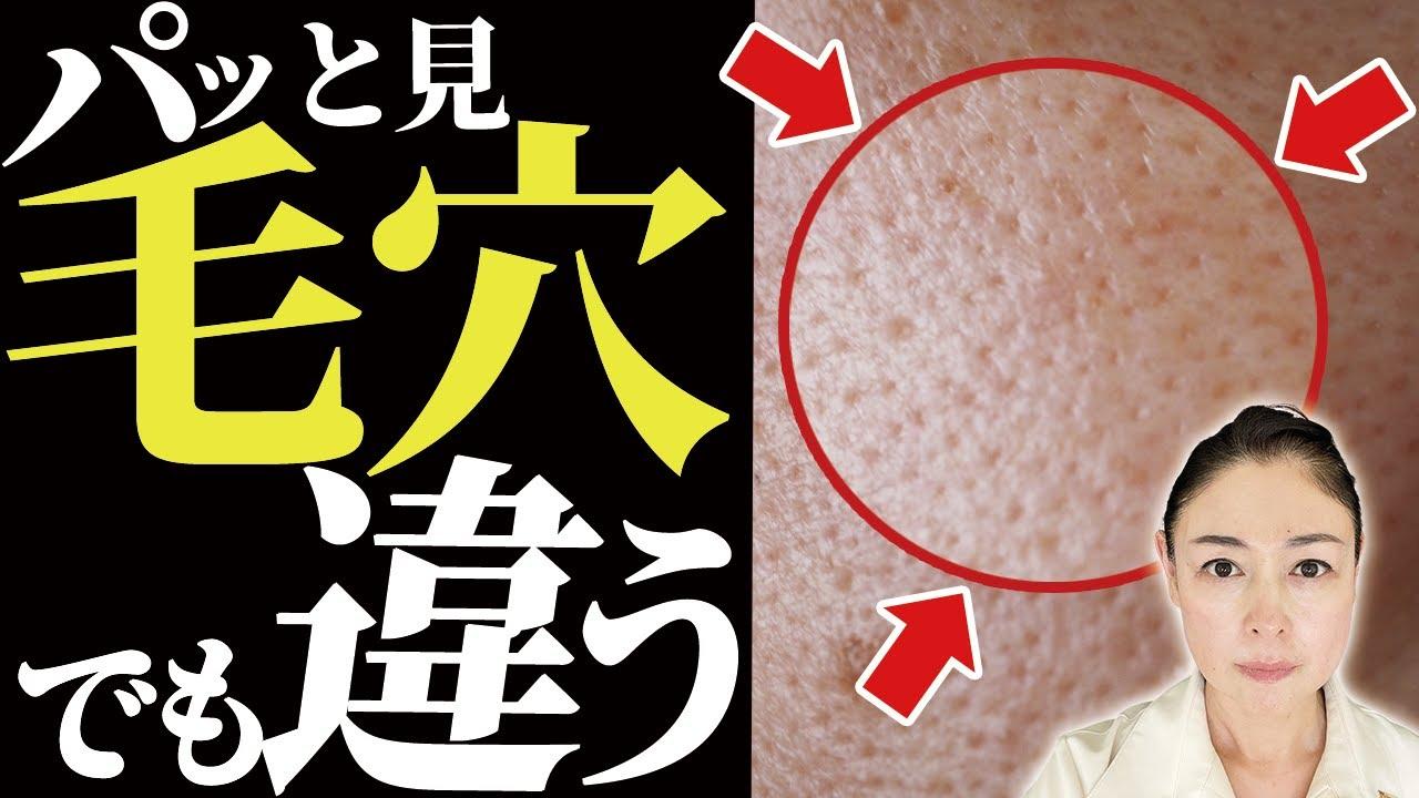 【頬の毛穴の開きの原因と改善法】頬の毛穴が開くには理由があります!理由を知ってしっかり対策!原因が分かれば改善できる!