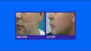 Revitol Scar Removal Cream - Acne Scar Treatment - Revitol Scar Cream Reviews