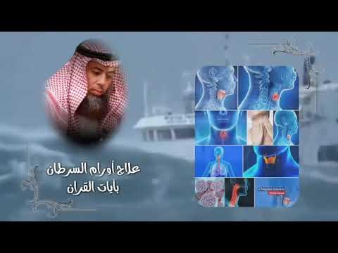 guérison des cancers par le coran -  علاج أورام السرطان بأيات القران  الشيخ   خالد بن محمد باكوبن