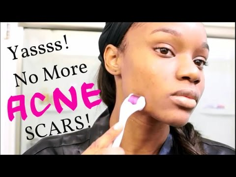 How i got rid of my acne scars and dark spots banishacnescars how i got rid of my acne scars and dark spots banishacnescars youtube ccuart Image collections