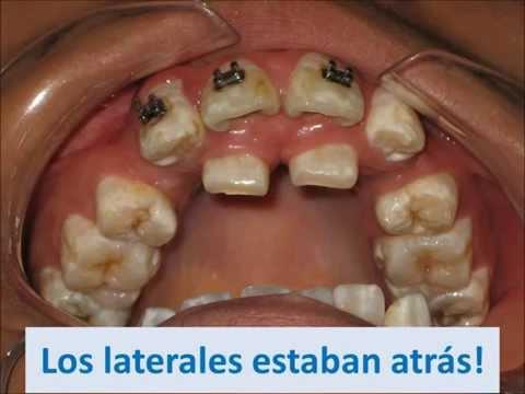 Avance de caso de ortodoncia, laterales en segunda fila