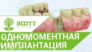Имплантация после удаления. ␡ Одномоментная имплантация сразу после удаления зуба .(, 2018-02-25T20:52:17.000Z)
