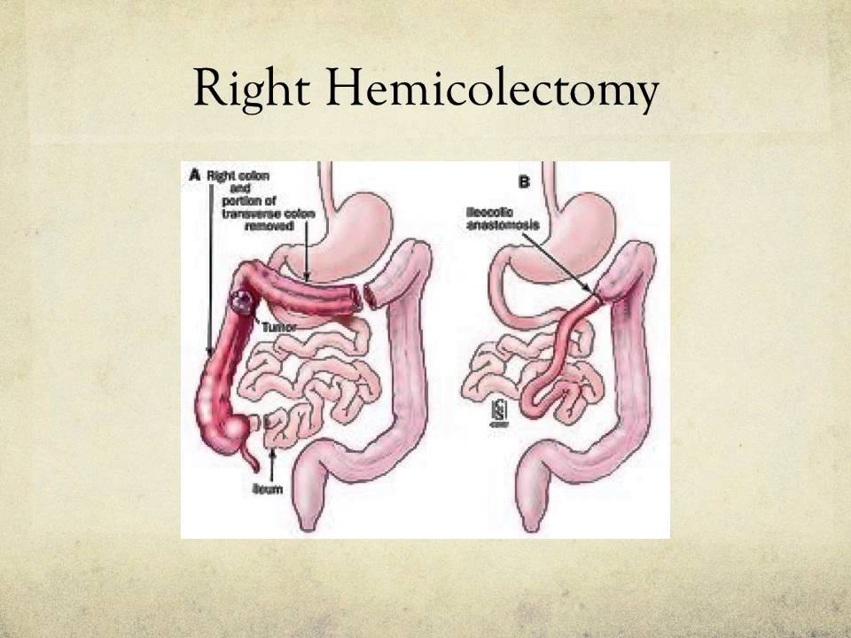 Colorectal cancer powerpoint presentation - YouTube