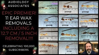 1 HR/11 EAR WAX REMOVALS