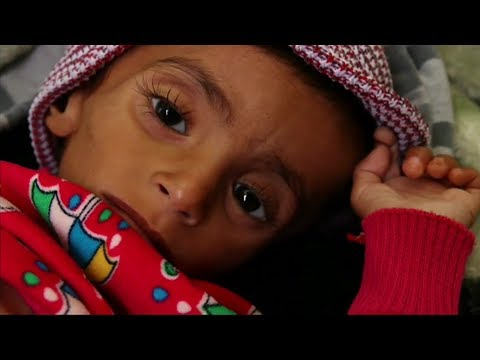 الموت جوعا في اليمن  - نشر قبل 3 ساعة