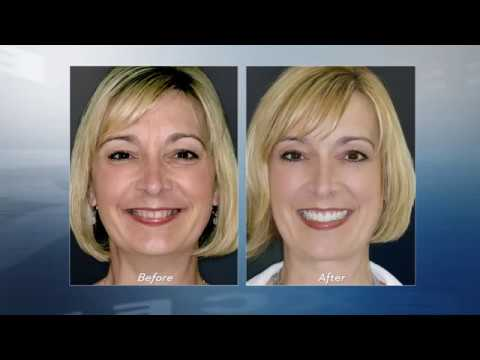 Rockland County Denture Fountain of Youth™