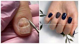 Дизайн ногтей вуаль Как отодвинуть налипшую кутикулу Повреждённый ноготь