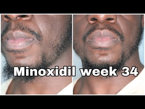 minoxidil-journey-week-34-(it's-working!!)