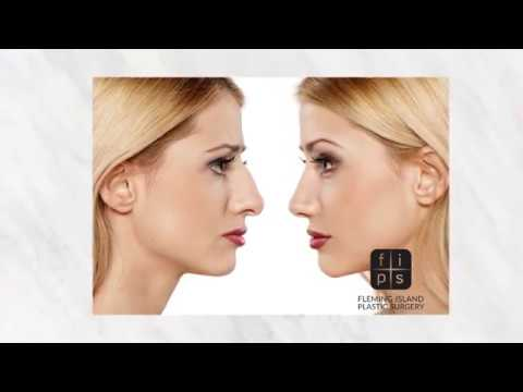 Rhinoplasty at Fleming Island Plastic Surgery