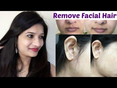 Does acne affect beard growth?