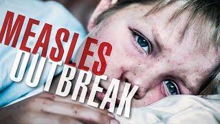 Thanks To Anti-Vaxxers, Measles Outbreak Spreads To 24 States