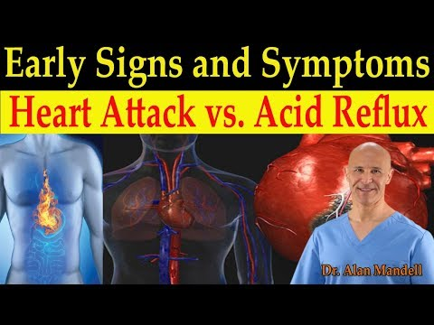 Identifying Heart Attack vs. Acid Reflux (GERD) Early Warning Signs & Symptoms - Dr. Mandell, DC