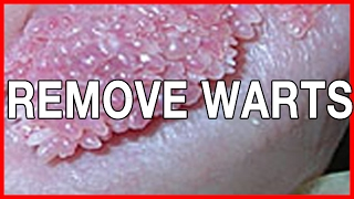 Genital Wart Removal for Women: Information, pictures and methods