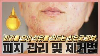 끊임없이 분비되는 얼굴 피지 관리 및 제거 방법