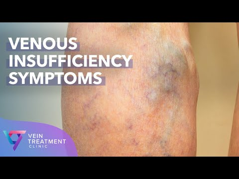 medical-center:-venous-insufficiency-symptoms-|-spider-and-varicose-vein-treatment-center