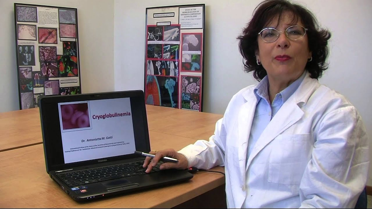 Cryoglobulenemia by Dr. Anoniette M. Gatti - YouTube