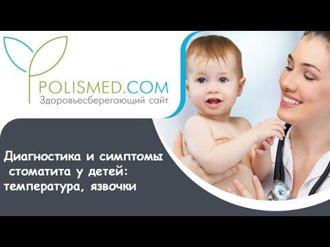 Диагностика и симптомы стоматита у детей: температура, язвочки
