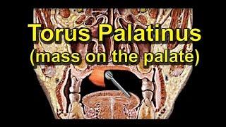 How To Remove A Tumor/ Lump On The Palate (Torus Palatinus)