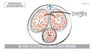 [발기부전 원인 검사#2: 음경 도플러] 발기부전 검사…