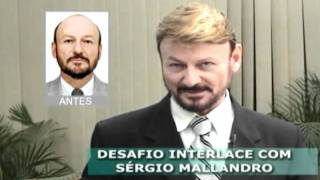 Protese Capilar Curitiba - Interlace Curitiba