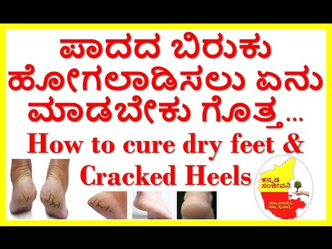 How to cure dry feet & cracked heels at home..Kannada Sanjeevani..