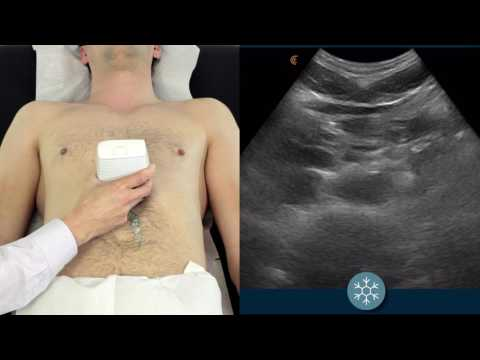 How to scan the abdominal aorta to assess for a potential AAA