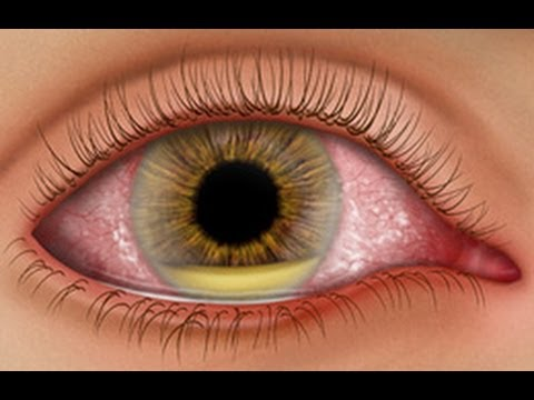 Medical Video Lectures: How to approach RED EYE disease