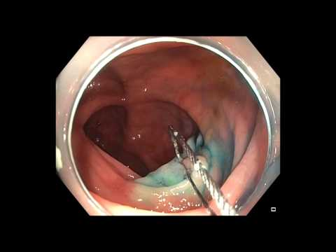 Serrated Polyps of the Colon: Ensuring Complete Removal