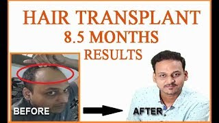 HAIR TRANSPLANT IN INDIA (2018)|| 8.5 MONTHS COMPLETE|| BEST RESULTS ||10 FAQ ANSWERED||