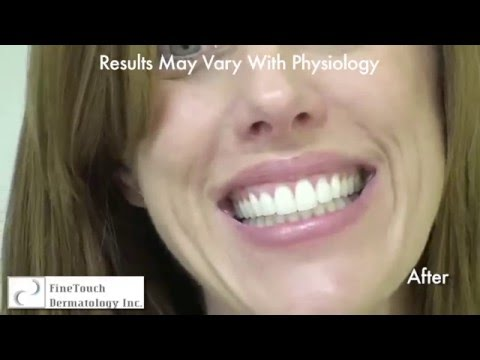 Laugh Lines treatment by Hydrelle Injections -  S. Umar, MD