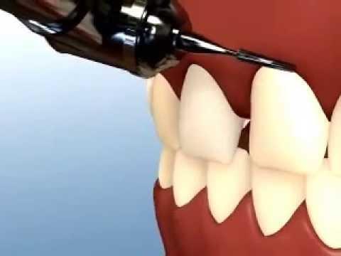 Veneers   Cosmetic Dentist Dubai  Smile Makeovers Dubai Abu Dhabi