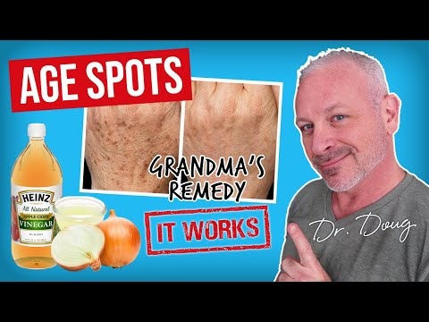 Age Spot Cure: Onion Juice and ACV!