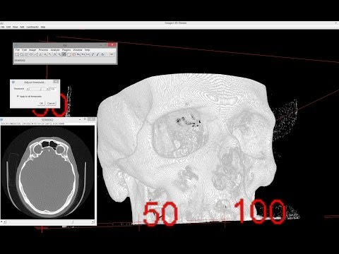 3D viewing of CT / MRT data using Fiji / ImageJ
