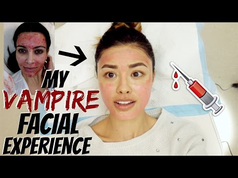 My Vampire Facial Experience | Everything You Need to Know about Micro-Needling with PRP