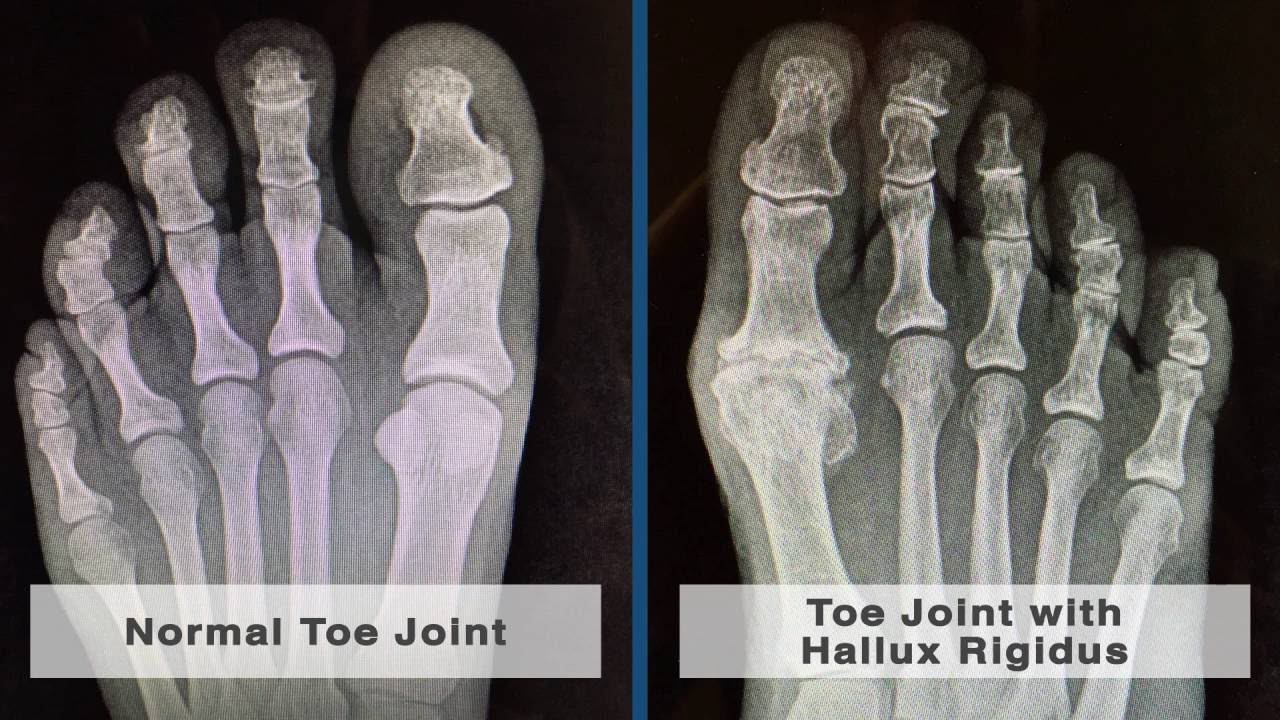 hight resolution of causes and treatment of pain in the big toe joint