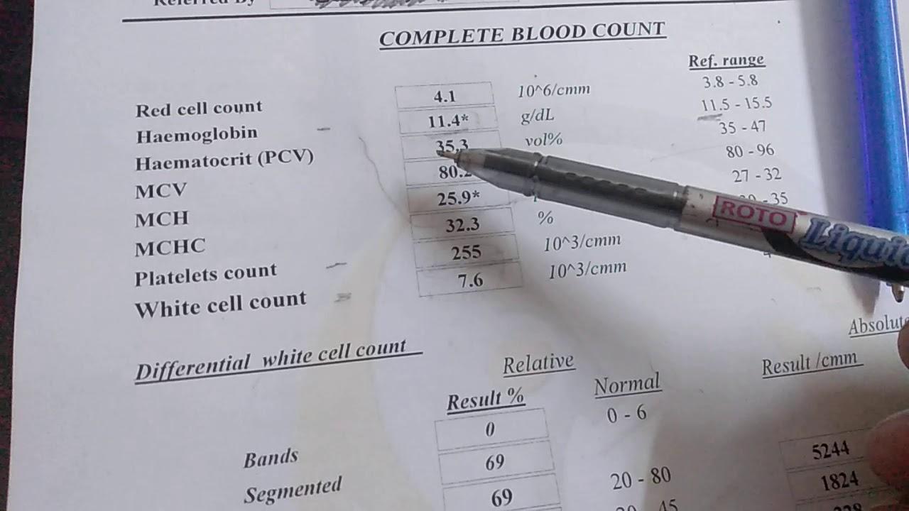 قراءة تحليل صورة الدم ومعرفة حالتك المرضية Anemia Complete Blood Count Cbc Youtube