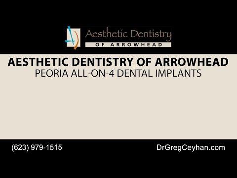 Peoria All-On-4 Dental Implants | Aesthetic Dentistry of Arrowhead
