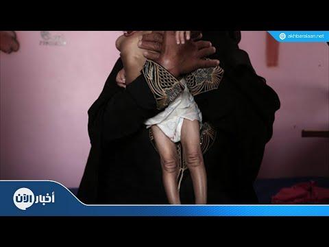المجاعة في اليمن قد تطال 13.4 مليون شخص  - 13:55-2018 / 10 / 16