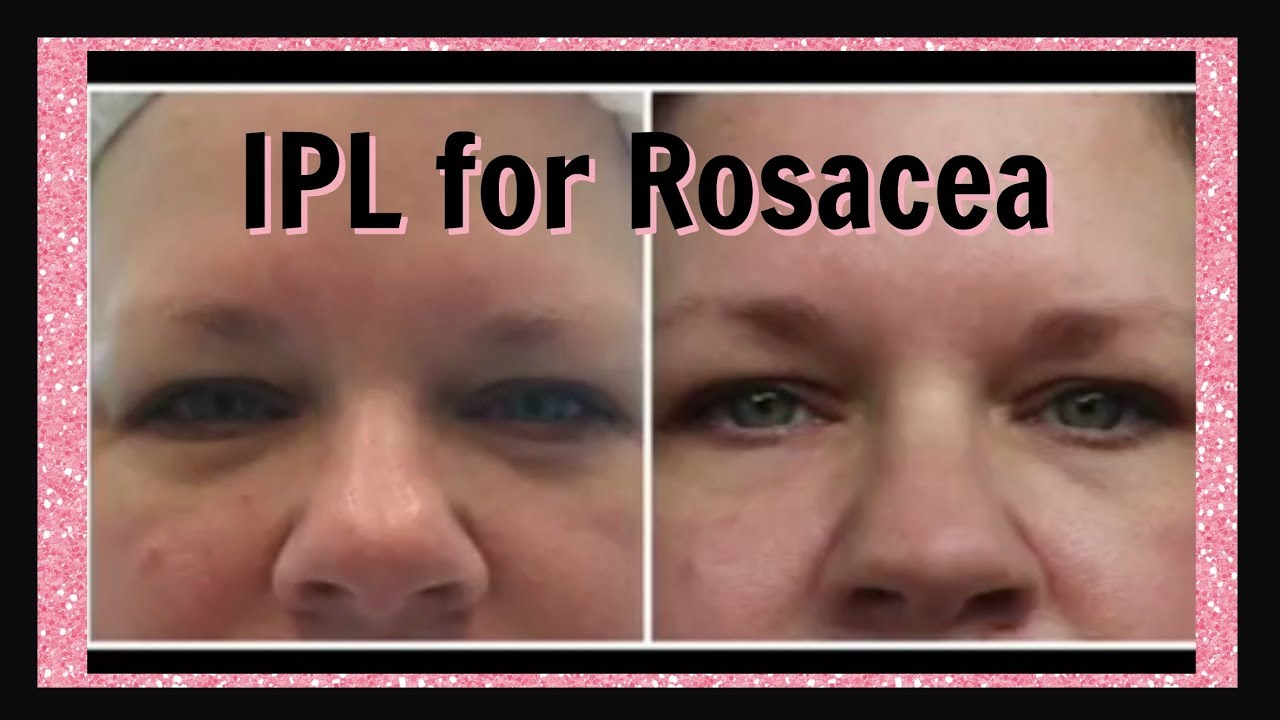 Laser Treatment For Rosacea Youtube