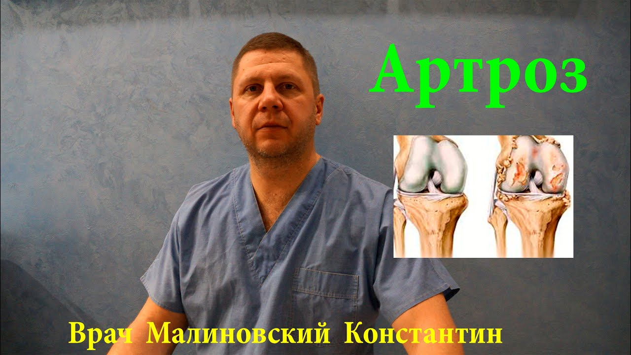 Лечение артроза. Общие рекомендации
