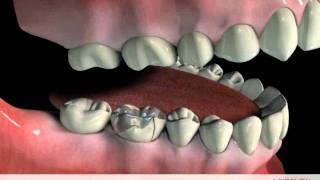 Dental crown procedure video