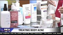 hqdefault - Over The Counter Body Acne Treatment