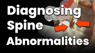 Diagnosing Spine Abnormalities (WHERE is the Source of Back Pain?)