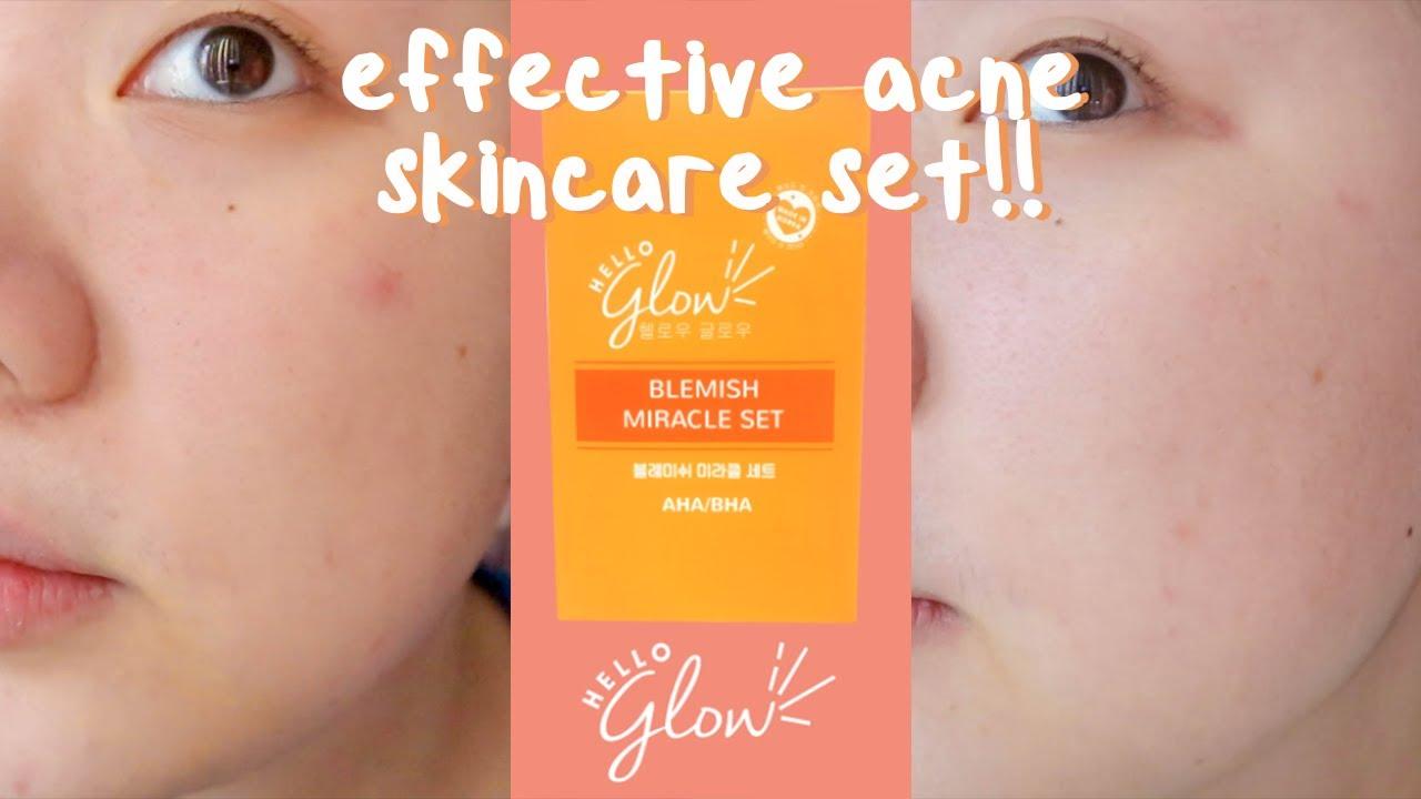🍊hello glow blemish miracle set✨ // 2 week test