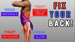 """Fix """"Anterior Pelvic Tilt"""" in 10 Minutes/Day (Daily Exercise Routine)"""