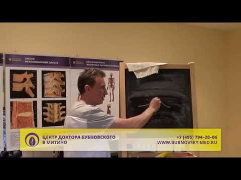 Чем и как лечить артрит стопы в домашних условиях